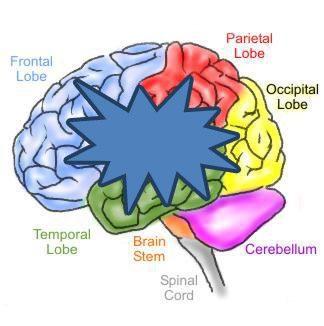 Epilepsy Types - EWCT